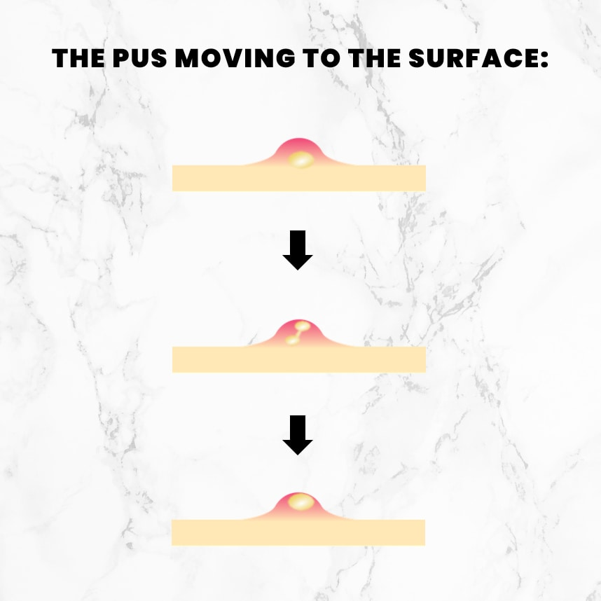 An illustration showing pus moving through the pore to the surface of the skin