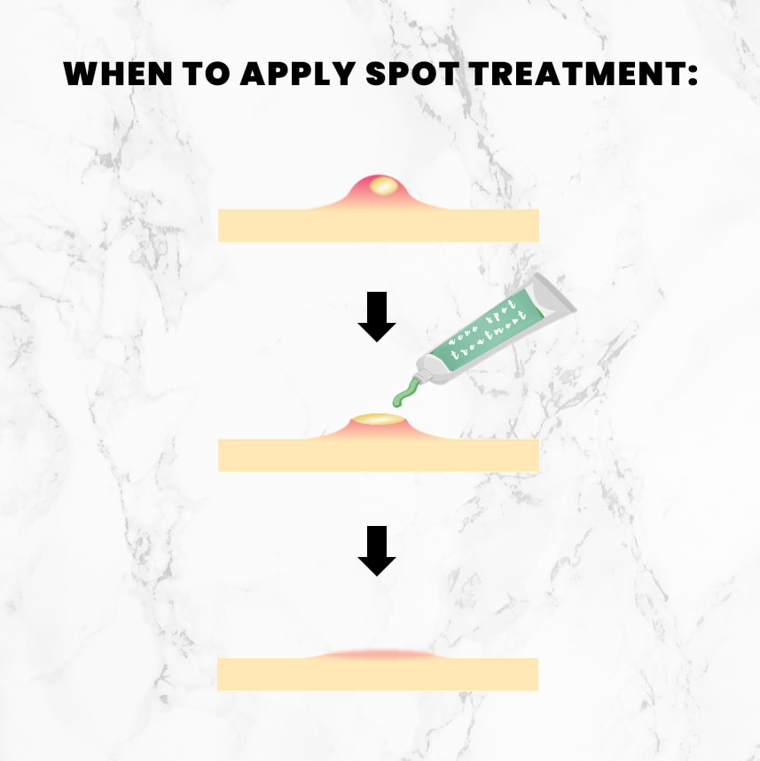 An illustration showing the effect of a spot treatment when applied after the extraction