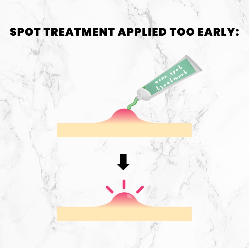 An illustration showing the effect of a spot treatment when applied before the extraction